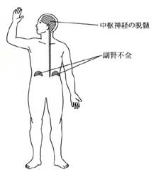 髄膜炎菌/肺炎球菌で副腎クリー...