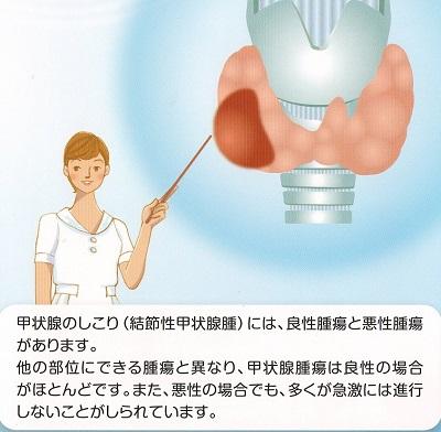 が ん 手術 甲状腺 甲状腺腫瘍