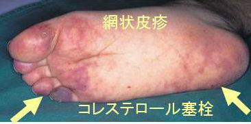 症 コレステロール 塞栓