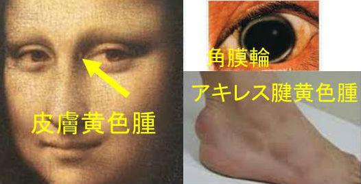日本動脈硬化学会-公式サイト-