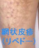 グロブリン 症 クリオ 血