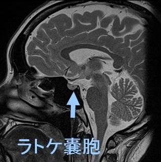 ラトケ嚢胞/エンプティ・セラ症候群で下垂体機能低下症[橋本病 ...