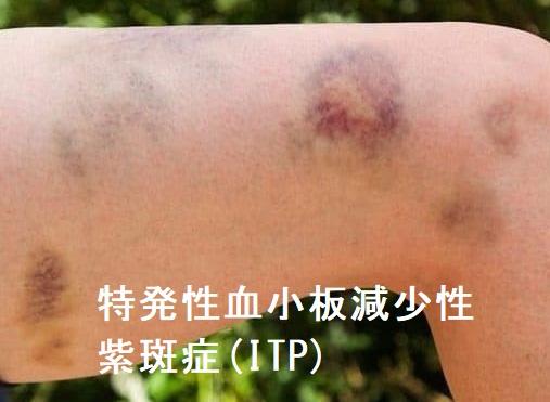 紫斑 性 特発 病 減少 性 血小板