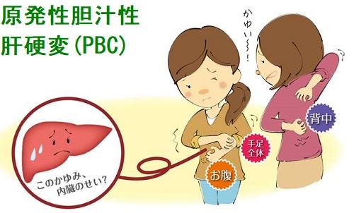 胆汁 性 性 肝硬変 原発