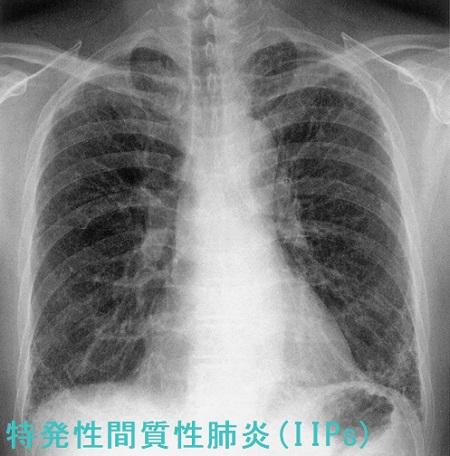 肺炎 レントゲン [医師監修・作成]肺炎の原因は?診断はどうやってつけるの?