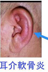甲状腺と耳鼻の異常[甲状腺専門医 橋本病 バセドウ病 超音波エコー検査 ...