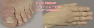関節痛・EMO症候群・HTLV-1関連関節症と甲状腺[甲状腺 専門医 橋本病 バセドウ病 甲状腺超音波(エコー)検査 長崎甲状腺クリニック(大阪)]